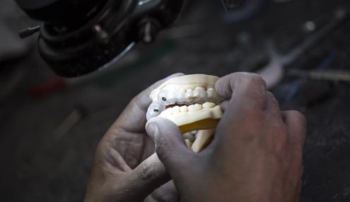 3D 列印的牙科模型可以提高數位化牙科實驗室的功能和效率。